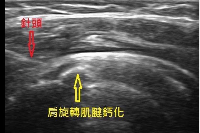 超音波導引鈣化穿刺破壞術